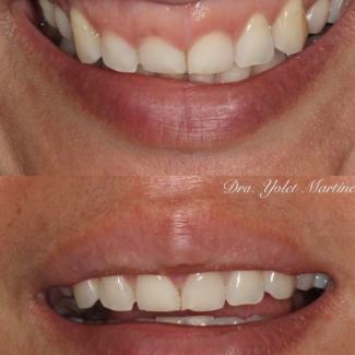 gingival1